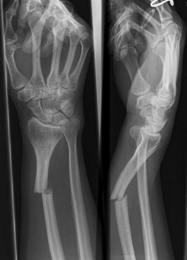 bones fault
